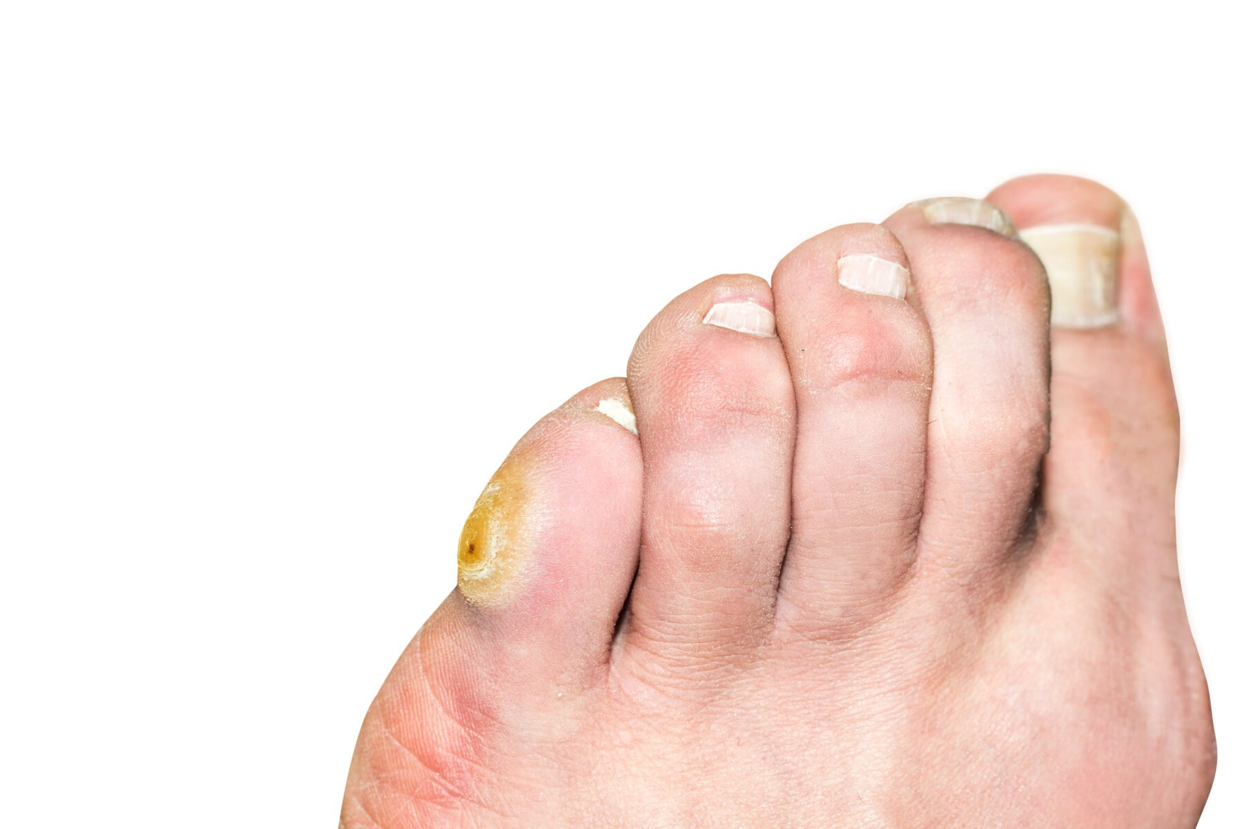 Corn On The Pinky Toe: Calluses Causes and Treatments | Canyon Oaks